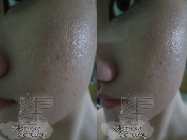 Acnes Skin Care Review